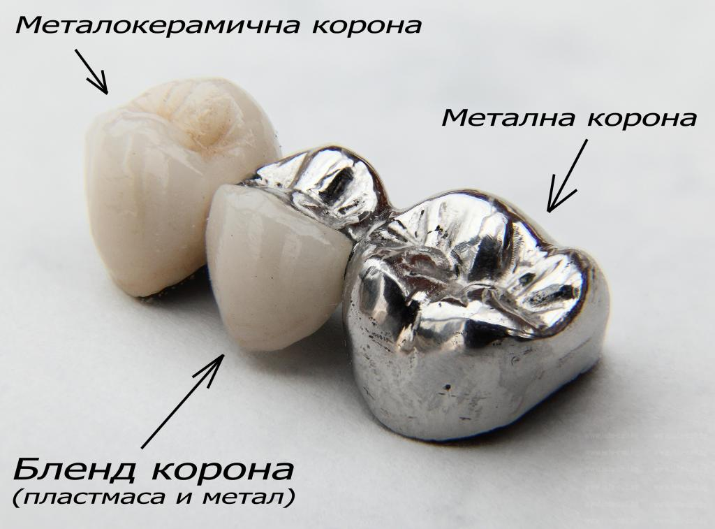 МТЛ КРИСТАЛ ДЕНТ - Зъботехническа лаборатория в Шумен