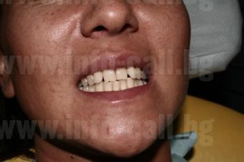 дентална клиника БОДЕНТ - Комплексна и естетична стоматология в Бургас